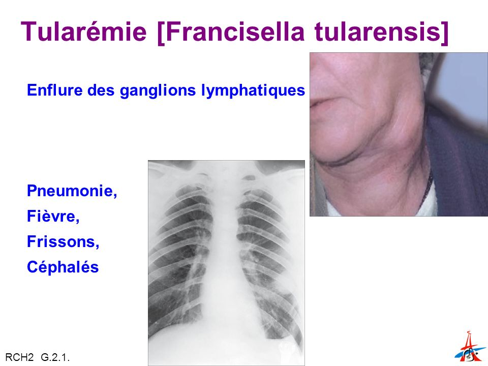 Tularémie [Francisella tularensis]